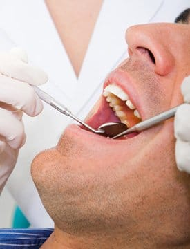 Grinding teeth (bruxism) can cause dental problems, explains Dr. Shannon